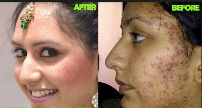 A True Beauty Spell  +27739970300 anwar sadat